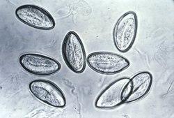 Paraziták tünetei kisgyermekekben