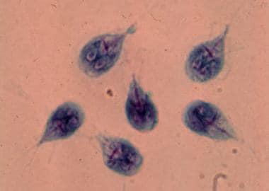 káposzta giardiasis)