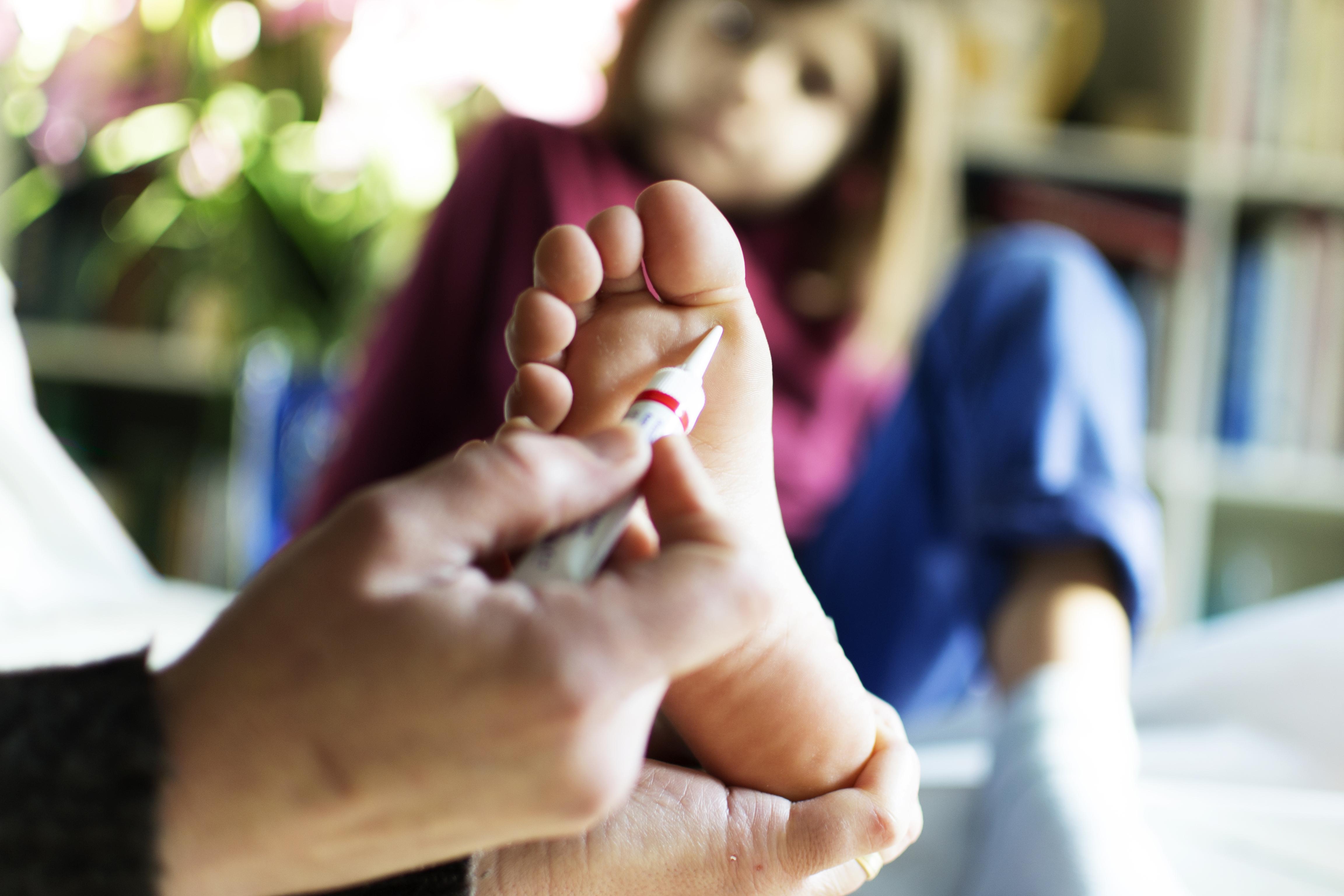 lábszemölcs kezelés szalag)