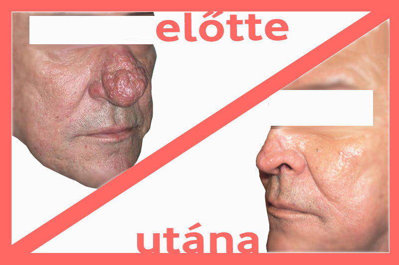 Az orrpolip: okok, tünetek, kezelés és megelőzés