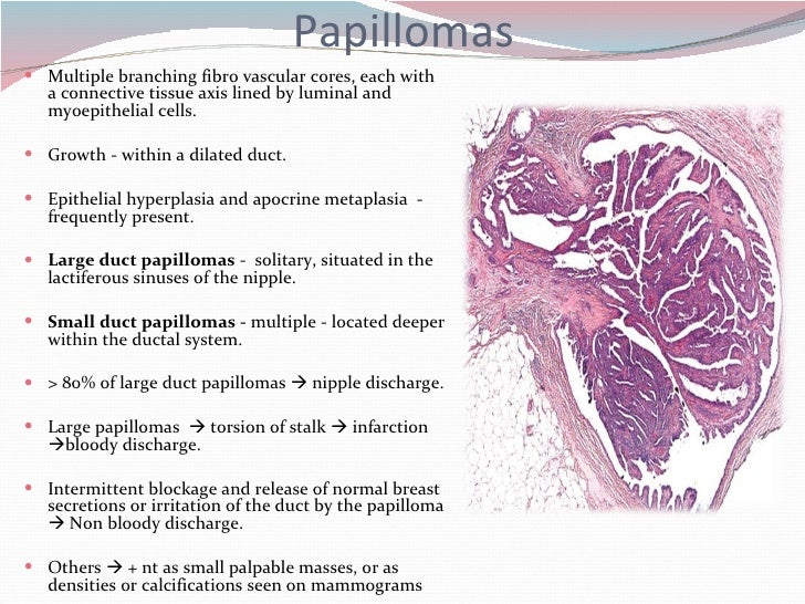 ductalis papilloma ppt)