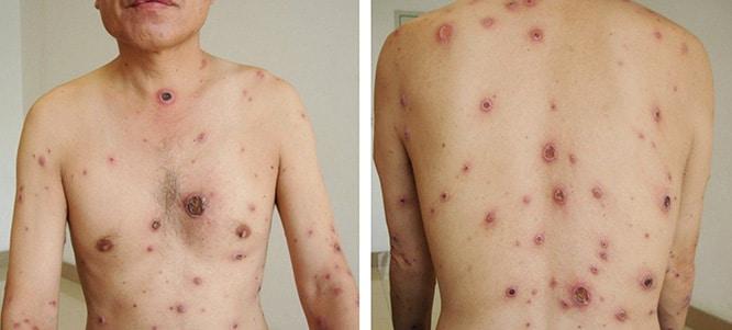 Végbélrák - A betegség kialakulása, első tünetei