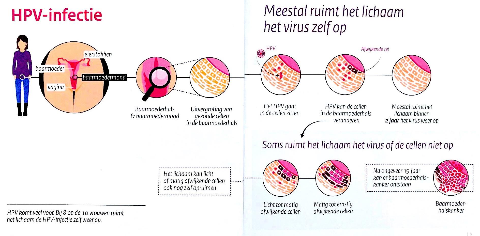 neuroendokrin arcrák kipirulás fokozott condyloma