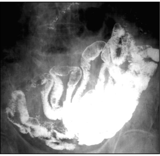 ileocecalis rák tünetei