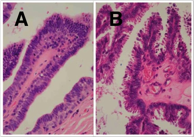intraductalis papilloma és dcis