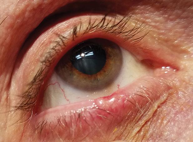 laphámsejtes papilloma bőr patológiája