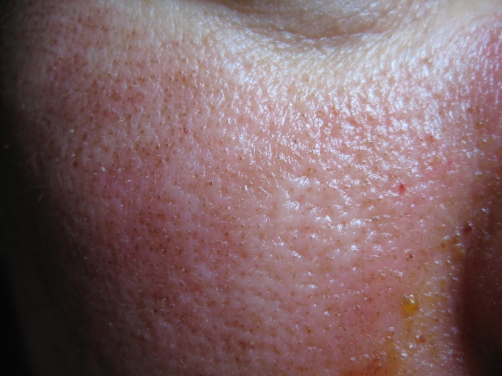 Hogyan lehet megszüntetni az emberi papilloma vírust - A HPV tünetei