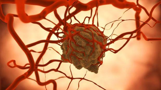 nem hormonális rák hodgkin rák tünetei
