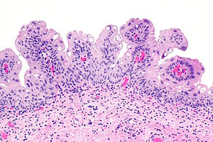 papilloma urothelialis hisztopathology)