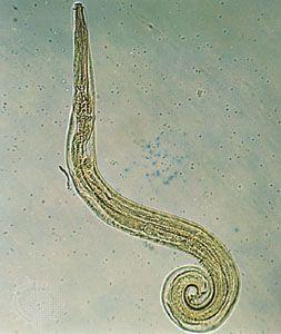Gyermekek pinworm hossza