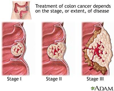 rectosigmoid rák reszekció)