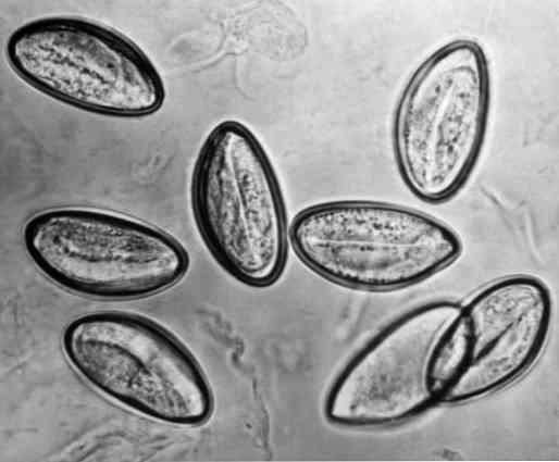 Az enterobiasis kórokozója a pinworm - Pinworms kezelése: tünetek és gyógyszerek Krónikus pinworms