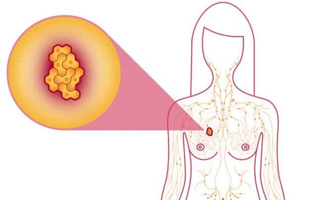 rák jóindulatú daganatok ciszta