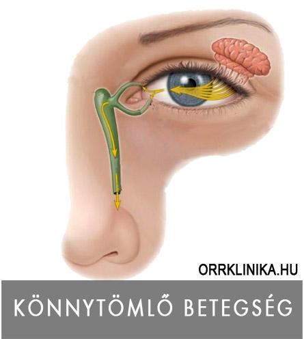 sinus rák tünetei)