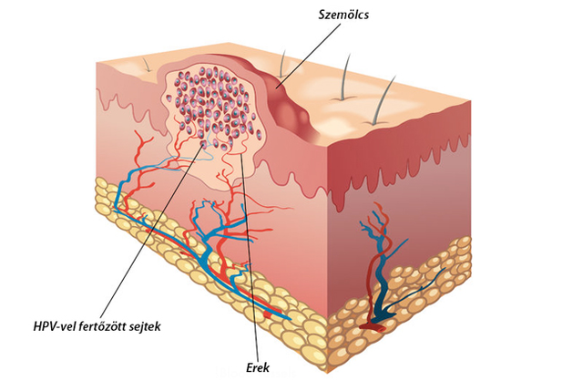 Vírusos bőrbetegségek: a szemölcsök