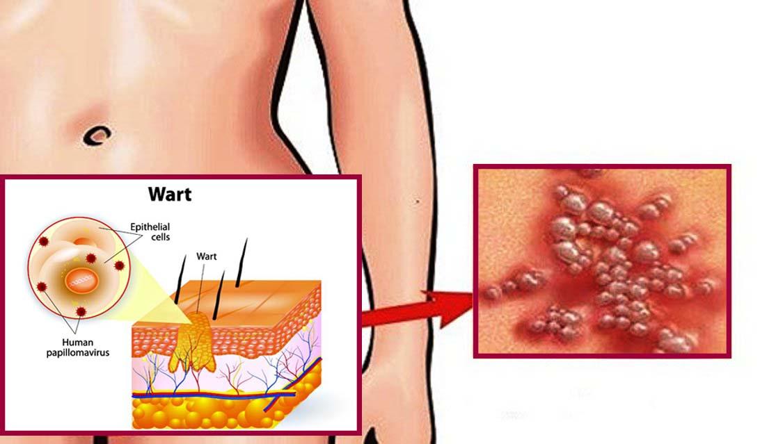 kako leciti papillomavírus szarkóma rák alternatív kezelés