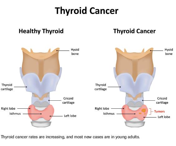Tumormarkerek, laborvizsgálatok, laborleletek értelmezése.Fórum