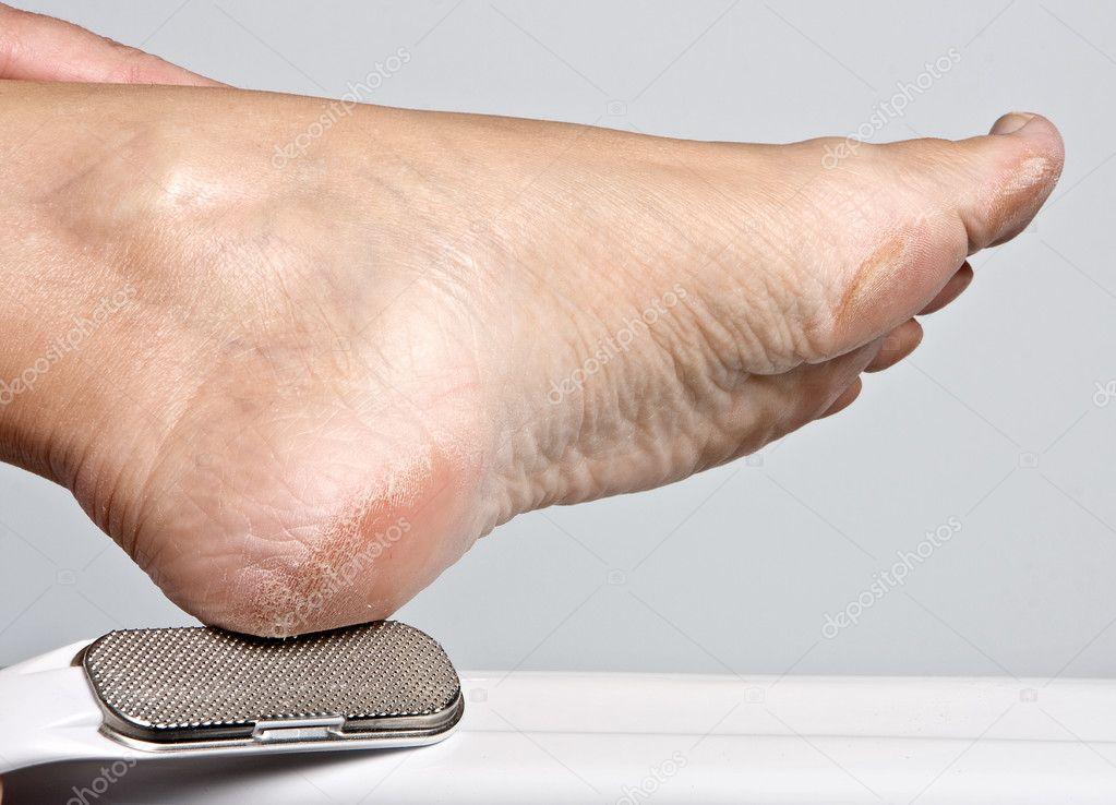 lábszemölcs és kukorica