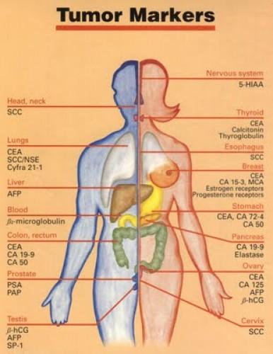 hasi rák tumor markerek
