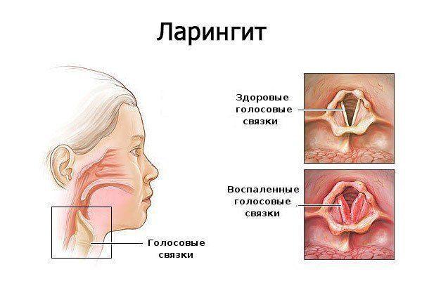 az orrszeptum papilloma