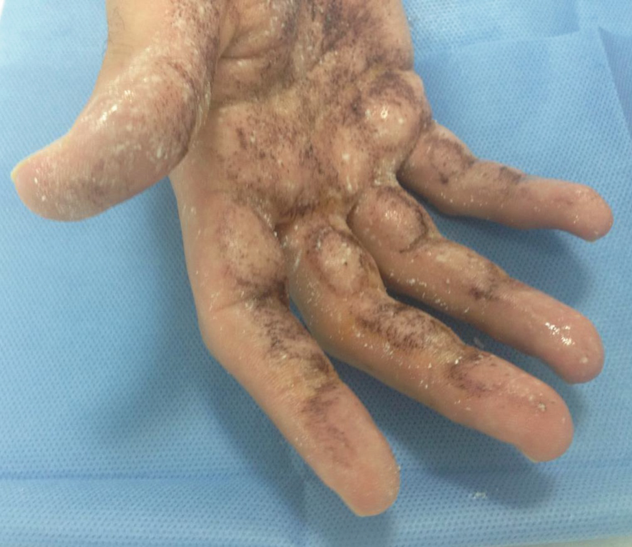 botulinum toxin hyperhidrosis)