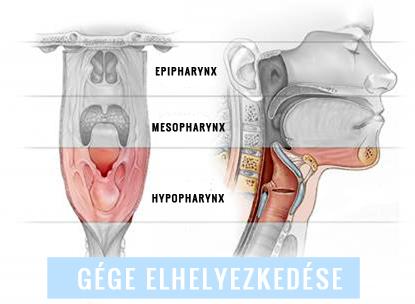 gal-kuria.hu - HPV FERTŐZÉS: TOVÁBBADHATJUK, MÉG HA NEM IS TUDUNK RÓLA