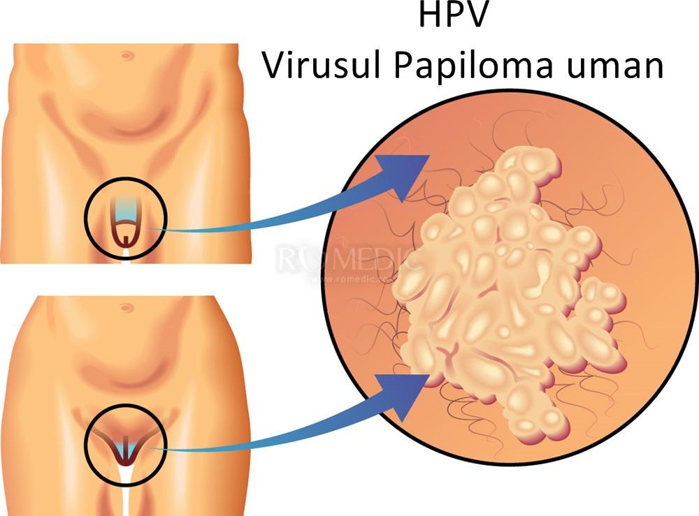 gombás parazitákkal történő kezelés hpv rákmegelőzési vakcina