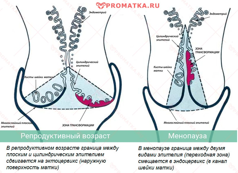 humán papillomavírus konizációja